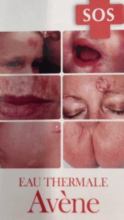 svamp i hudfolder